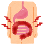 潰瘍性大腸炎とは…